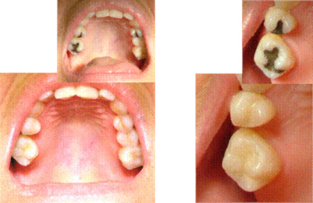 Cosmetic Fillings