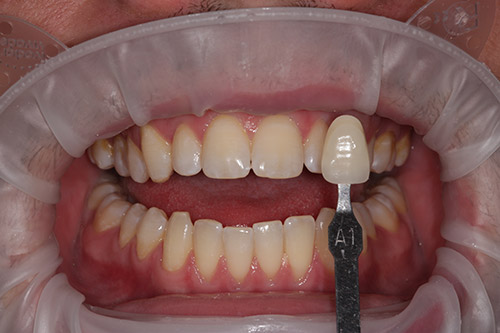 gentle-whitening-after
